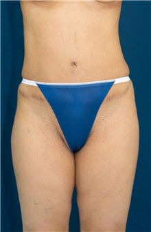 Tummy Tuck After Photo by Ricardo Rodriguez, MD; Lutherville-Timonium, MD - Case 27104