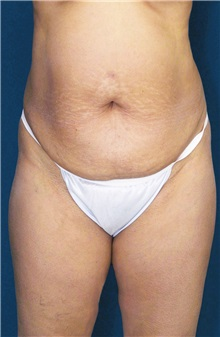Tummy Tuck Before Photo by Ricardo Rodriguez, MD; Lutherville-Timonium, MD - Case 27104