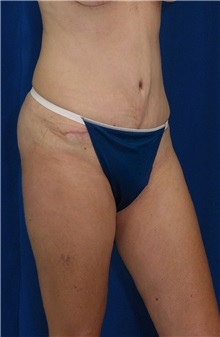 Tummy Tuck After Photo by Ricardo Rodriguez, MD; Lutherville-Timonium, MD - Case 27105