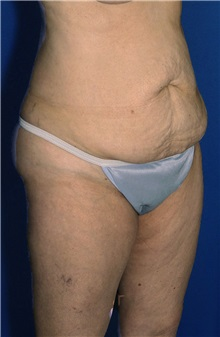 Tummy Tuck Before Photo by Ricardo Rodriguez, MD; Lutherville-Timonium, MD - Case 27105