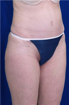Tummy Tuck After Photo by Ricardo Rodriguez, MD; Lutherville-Timonium, MD - Case 27106