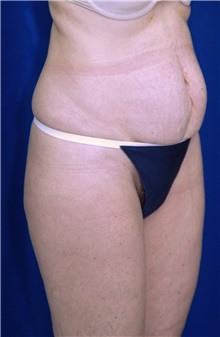 Tummy Tuck Before Photo by Ricardo Rodriguez, MD; Lutherville-Timonium, MD - Case 27106