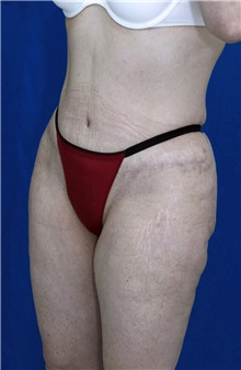 Tummy Tuck After Photo by Ricardo Rodriguez, MD; Lutherville-Timonium, MD - Case 27107