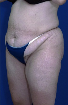 Tummy Tuck Before Photo by Ricardo Rodriguez, MD; Lutherville-Timonium, MD - Case 27107