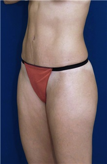 Tummy Tuck After Photo by Ricardo Rodriguez, MD; Lutherville-Timonium, MD - Case 27108