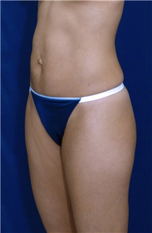 Tummy Tuck Before Photo by Ricardo Rodriguez, MD; Lutherville-Timonium, MD - Case 27108