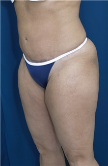 Tummy Tuck After Photo by Ricardo Rodriguez, MD; Lutherville-Timonium, MD - Case 27109