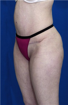 Tummy Tuck After Photo by Ricardo Rodriguez, MD; Lutherville-Timonium, MD - Case 27110