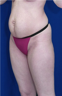 Tummy Tuck Before Photo by Ricardo Rodriguez, MD; Lutherville-Timonium, MD - Case 27110