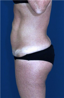 Tummy Tuck After Photo by Ricardo Rodriguez, MD; Lutherville-Timonium, MD - Case 27111