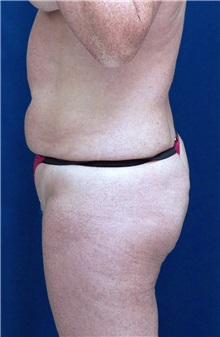 Tummy Tuck Before Photo by Ricardo Rodriguez, MD; Lutherville-Timonium, MD - Case 27111