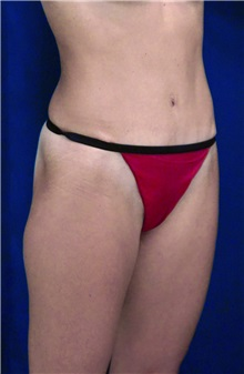 Tummy Tuck After Photo by Ricardo Rodriguez, MD; Lutherville-Timonium, MD - Case 27112