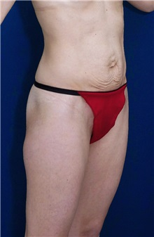 Tummy Tuck Before Photo by Ricardo Rodriguez, MD; Lutherville-Timonium, MD - Case 27112