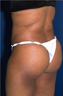 Tummy Tuck After Photo by Ricardo Rodriguez, MD; Lutherville-Timonium, MD - Case 27145