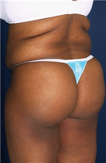 Tummy Tuck Before Photo by Ricardo Rodriguez, MD; Lutherville-Timonium, MD - Case 27145