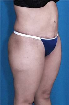 Tummy Tuck After Photo by Ricardo Rodriguez, MD; Lutherville-Timonium, MD - Case 27148