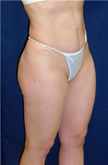 Tummy Tuck After Photo by Ricardo Rodriguez, MD; Lutherville-Timonium, MD - Case 27149