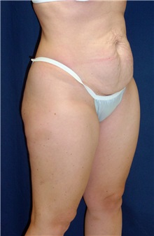 Tummy Tuck Before Photo by Ricardo Rodriguez, MD; Lutherville-Timonium, MD - Case 27149