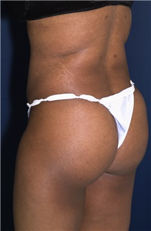 Buttock Implants After Photo by Ricardo Rodriguez, MD; Lutherville-Timonium, MD - Case 27150