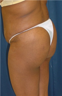 Buttock Implants After Photo by Ricardo Rodriguez, MD; Lutherville-Timonium, MD - Case 27151
