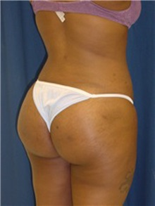 Buttock Implants After Photo by Ricardo Rodriguez, MD; Lutherville-Timonium, MD - Case 27156