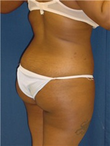 Buttock Implants Before Photo by Ricardo Rodriguez, MD; Lutherville-Timonium, MD - Case 27156
