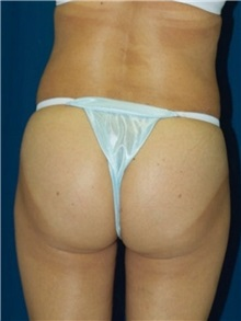 Buttock Implants After Photo by Ricardo Rodriguez, MD; Lutherville-Timonium, MD - Case 27157