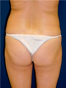 Buttock Implants Before Photo by Ricardo Rodriguez, MD; Lutherville-Timonium, MD - Case 27157