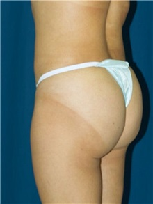 Buttock Implants After Photo by Ricardo Rodriguez, MD; Lutherville-Timonium, MD - Case 27159