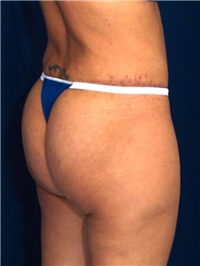 Buttock Implants After Photo by Ricardo Rodriguez, MD; Lutherville-Timonium, MD - Case 27160