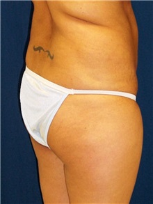Buttock Implants Before Photo by Ricardo Rodriguez, MD; Lutherville-Timonium, MD - Case 27160