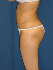 Buttock Implants After Photo by Ricardo Rodriguez, MD; Lutherville-Timonium, MD - Case 27161