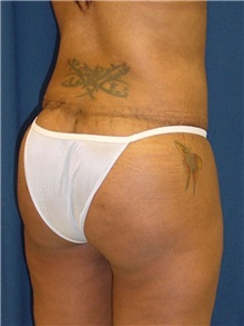 Buttock Implants After Photo by Ricardo Rodriguez, MD; Lutherville-Timonium, MD - Case 27162