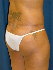 Buttock Implants Before Photo by Ricardo Rodriguez, MD; Lutherville-Timonium, MD - Case 27162