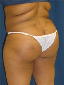Buttock Implants After Photo by Ricardo Rodriguez, MD; Lutherville-Timonium, MD - Case 27163