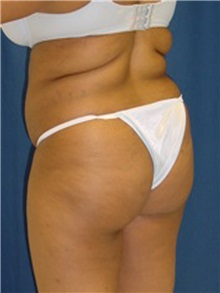 Buttock Implants Before Photo by Ricardo Rodriguez, MD; Lutherville-Timonium, MD - Case 27163