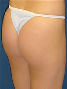 Buttock Implants After Photo by Ricardo Rodriguez, MD; Lutherville-Timonium, MD - Case 27164