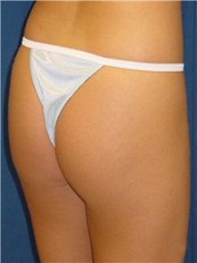 Buttock Implants Before Photo by Ricardo Rodriguez, MD; Lutherville-Timonium, MD - Case 27164