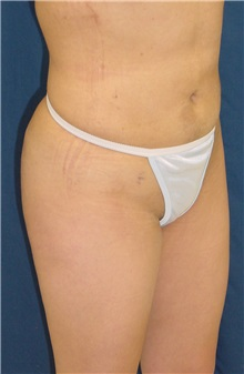 Buttock Implants After Photo by Ricardo Rodriguez, MD; Lutherville-Timonium, MD - Case 27165