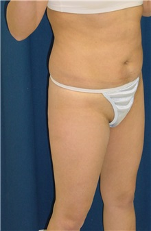 Buttock Implants Before Photo by Ricardo Rodriguez, MD; Lutherville-Timonium, MD - Case 27165