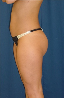 Buttock Implants After Photo by Ricardo Rodriguez, MD; Lutherville-Timonium, MD - Case 27166