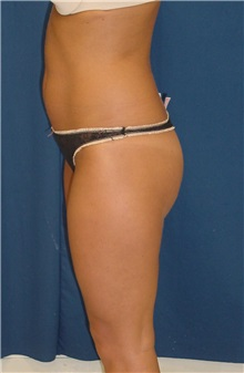 Buttock Implants Before Photo by Ricardo Rodriguez, MD; Lutherville-Timonium, MD - Case 27166