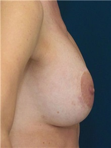 Breast Lift After Photo by Ricardo Rodriguez, MD; Lutherville-Timonium, MD - Case 27180