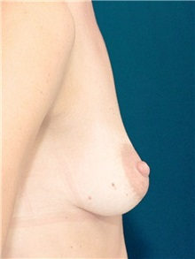 Breast Lift Before Photo by Ricardo Rodriguez, MD; Lutherville-Timonium, MD - Case 27180