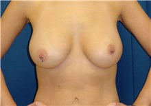Breast Lift After Photo by Ricardo Rodriguez, MD; Lutherville-Timonium, MD - Case 27181