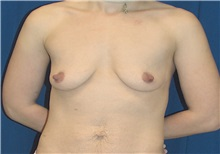 Breast Lift Before Photo by Ricardo Rodriguez, MD; Lutherville-Timonium, MD - Case 27181