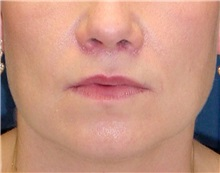 Dermal Fillers After Photo by Ricardo Rodriguez, MD; Lutherville-Timonium, MD - Case 27316