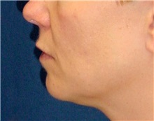 Dermal Fillers Before Photo by Ricardo Rodriguez, MD; Lutherville-Timonium, MD - Case 27316