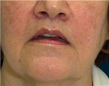 Dermal Fillers After Photo by Ricardo Rodriguez, MD; Lutherville-Timonium, MD - Case 27317
