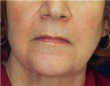 Dermal Fillers Before Photo by Ricardo Rodriguez, MD; Lutherville-Timonium, MD - Case 27317